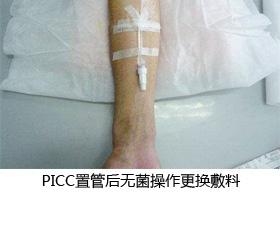 PICC置管后护理