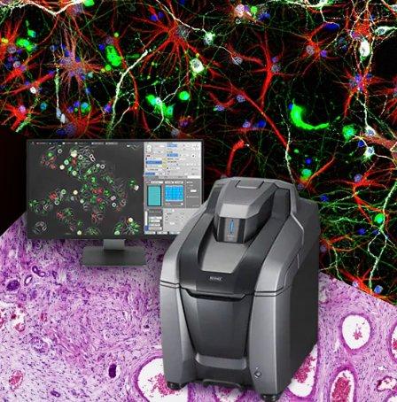 KEYENCE 显微镜 - 3D显微系统