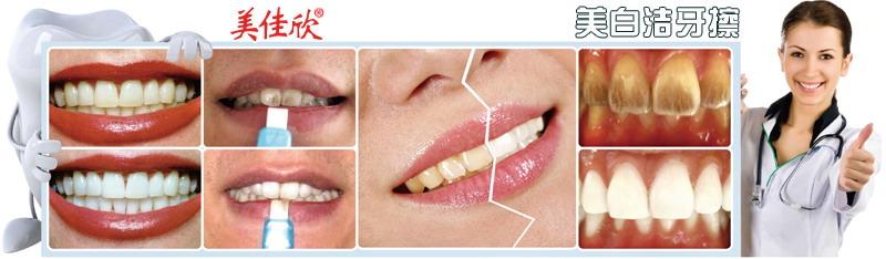 每天早晚都刷牙,有什么办法可以让牙齿白一点?-厦门思航纳米科技有限公司